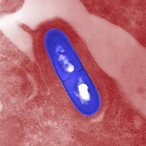 Listeria monocytogenes electron micrograph
